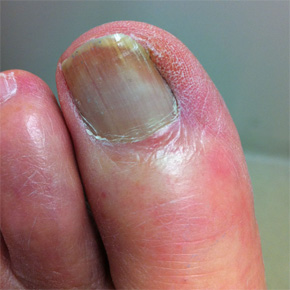 how to fix recurring ingrown toenail