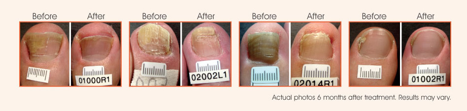 Pinpointe Footlaser For Toenail Fungus In Sydney